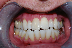 Whitening 01 After